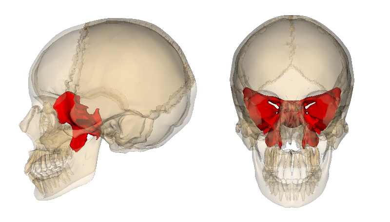 neurocranial restructuring & nasal specific in nyc., Sphenoid